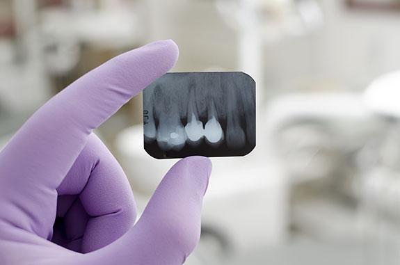 dentist holding dental xray | Doctor Kenneth J. Wolnik, DDS