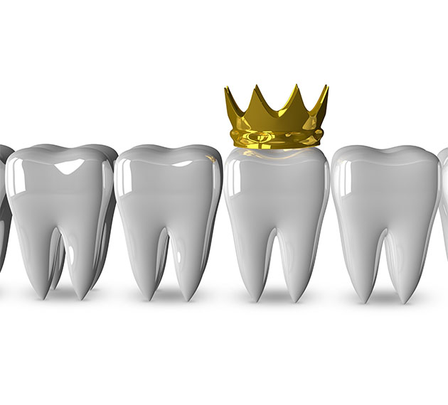 Group of aligned molars, one wearing a crown.