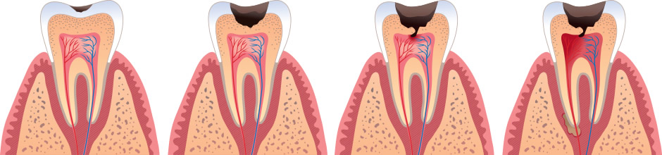 Cavity fillings dental treatment in parma heights oh